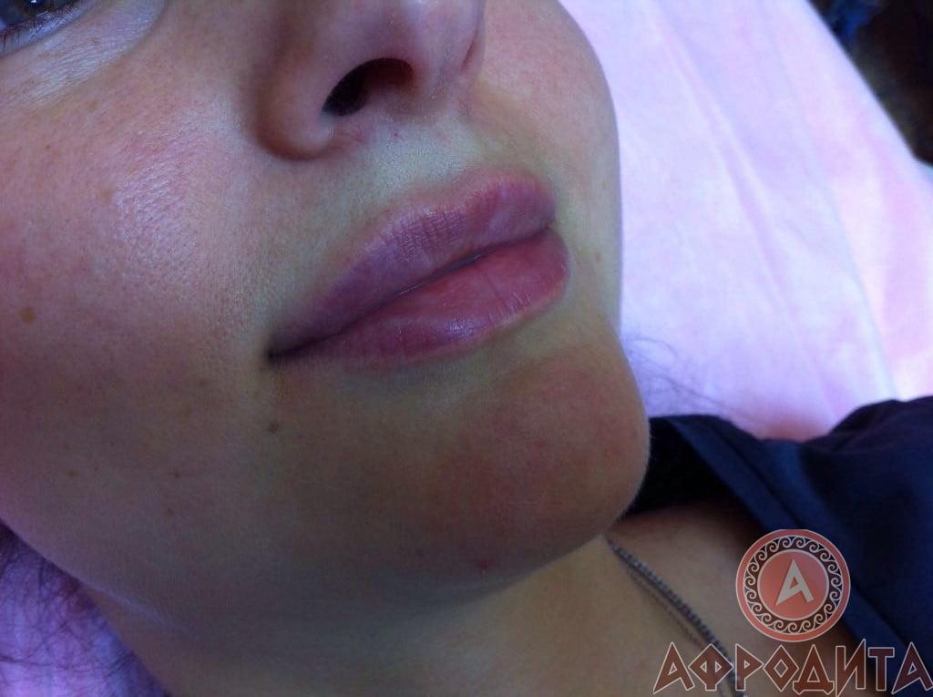 Увеличение губ в спа салоне Афродита