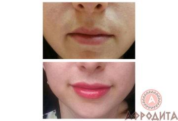 Увеличение губ филлером Juvederm Ultra Smile