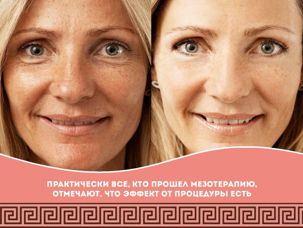 Мезотерапия лица: суть процедуры и отзывы на нее